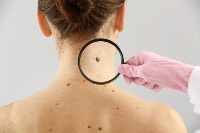 Spotting skin cancer early can greatly improve the prognosis (Photo: Shutterstock)