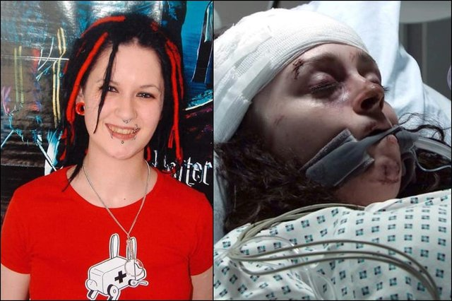 Sophie Lancaster (left) was murdered, aged 20, for how she looked. The story will now be reflected by Coronation Street actress Mollie Gallagher (right) as her character Nina is attacked (Picture: ITV)