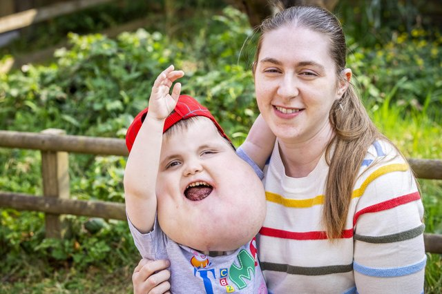 Alex Grabowski was born in January 2017 with cystic hygroma (SWNS)