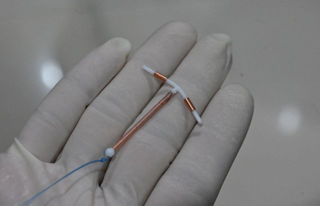 A recent petition for better pain relief during IUD insertions has seen a deluge of women recount painful experiences of fittings.