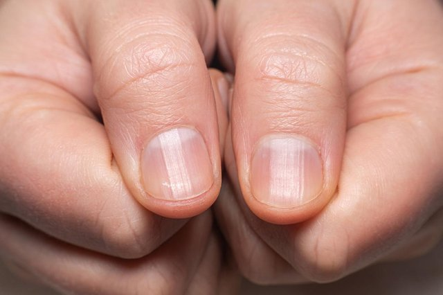 'Beau's lines' are transverse indents in the nail (Photo: Shutterstock)