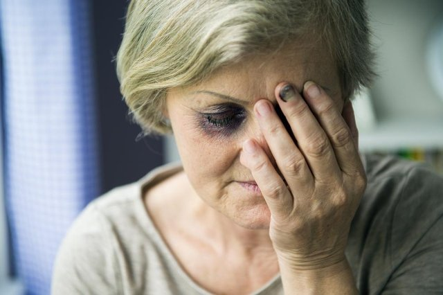 NHS trusts are advised to have a standalone domestic violence policy to help staff tackle the issue