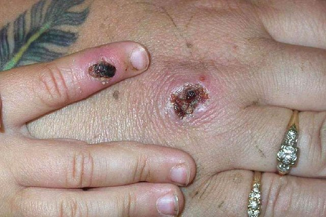 Monkeypox is a rare disease caused by infection with the monkeypox virus (Photo: CDC/Getty Images)